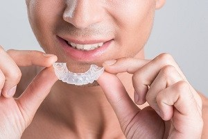 How Are Invisalign Clear Aligners Made?