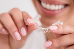5 Things to Know Before Getting Invisalign