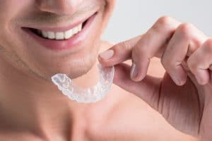 Invisalign Discount in Charlotte, NC