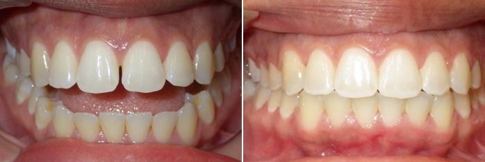 invisalign open bite treatment charlotte nc