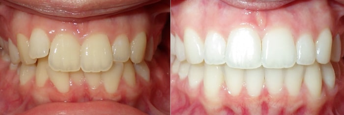 Invisalign treatment for crowding in charlotte nc