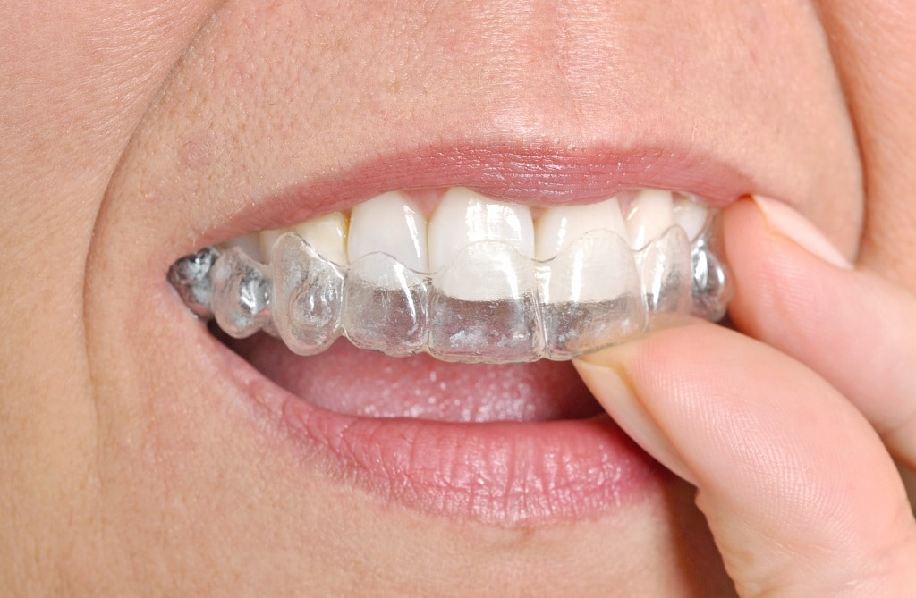 Clearsmile — Invisalign in Blakeney Village