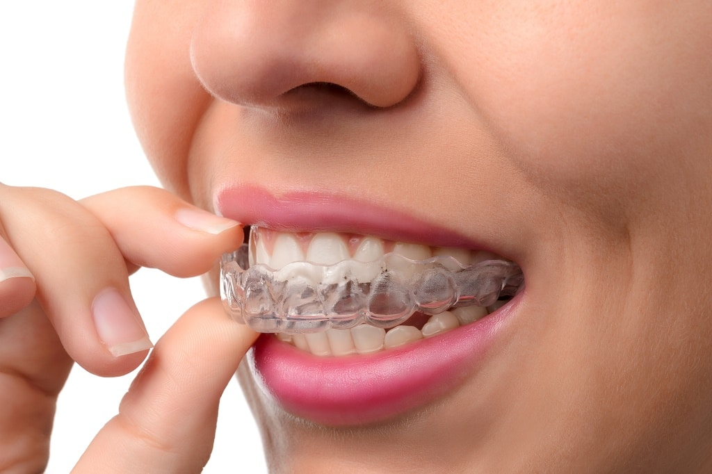 Questions to Ask Your Orthodontist Before Getting Invisalign